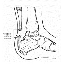 Achilles Tendon Rupture Foot Drawing