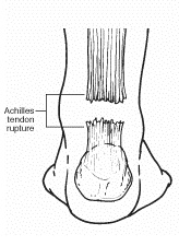 Achilles Tendon Rupture Rear Foot Drawing