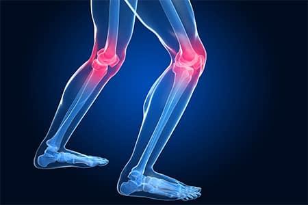 Knee pain graphic