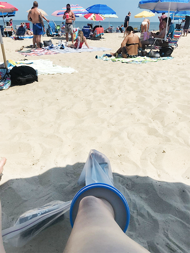 woman with cast cover at the beach